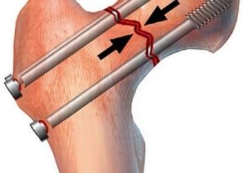 Ложный сустав бедра: причины, симптомы, лечение и операция