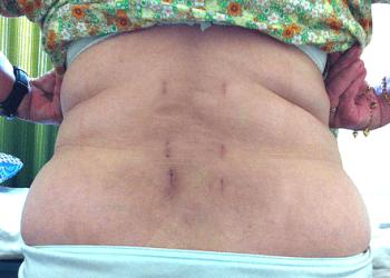 Боли и осложнения после операций на позвоночнике: причины, виды, профилактика и лечение