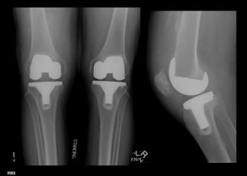 Эндопротезирование двух коленных суставов одномоментно: риски двухсторонней операции
