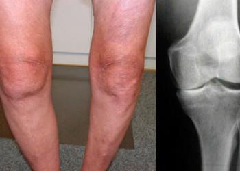Список диагнозов которые приводят к эндопротезированию суставов