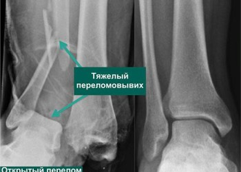 Реабилитация голеностопного сустава: восстановление после травм, артродеза, эндопротезирования