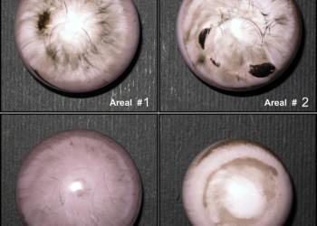 Скрежет и скрип керамических эндопротезов тазобедренного сустава: клиническое исследование