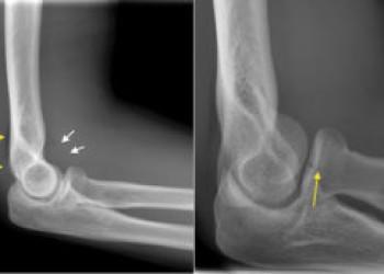 Эндопротезирование локтевого сустава: показания, противопоказания к операции