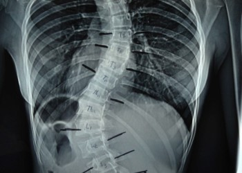 Хирургия при сколиозе: операция как спасение от сильной деформации позвоночника