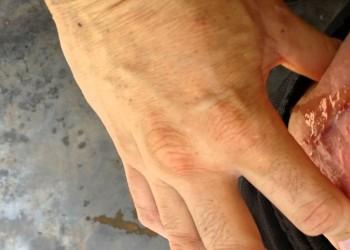 Отторжение эндопротеза тазобедренного и коленного сустава: причины, как определить, что делать