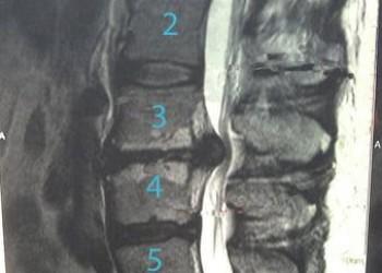 Реабилитация пациента после удаления межпозвоночной грыжи диска, сроки восстановления