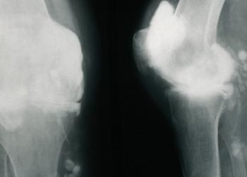 Артрит коленного сустава: что такое, симптомы, методы диагностики и лечения