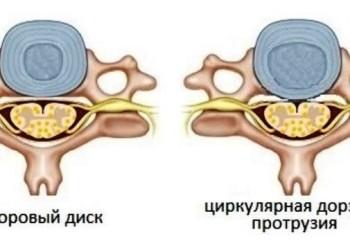 Циркулярная протрузия и грыжа межпозвоночного диска: что это такое, симптомы и лечение