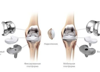 Центры реабилитации после эндопротезирования коленного сустава в Санкт-Петербурге