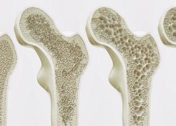 Эндопротезирование суставов при остеопорозе кости: риски операции при разных степенях