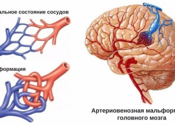Артериовенозные мальформации сосудов головного мозга: лечение, операции и последствия