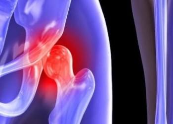 Технические особенности эндопротезирования короткостержневым имплантом ТБС