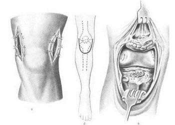 Что такое артротомия коленного сустава: техники операции, осложнения и восстановление