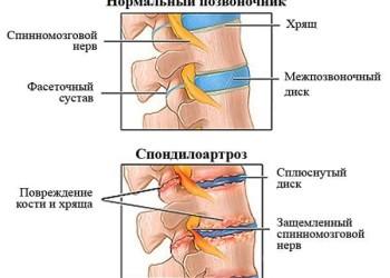 Артроз позвоночника