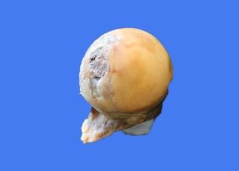 Эндопротезирование при асептическом некрозе: операция по замене тазобедренного сустава