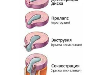 Отличие грыжи диска от протрузии диска: разница в симптомах и лечение