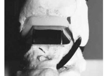 Эндопротезы голеностопного сустава: виды, производители, характеристики и сроки службы