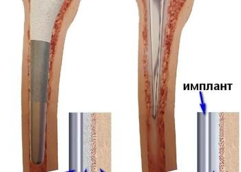 Различия бесцементного и цементного эндопротезирования тазобедренного сустава