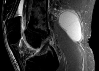 Киста Беккера, что это – симптомы и лечение заболевения коленного сустава