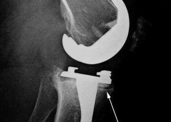 Почему хрустит и щелкает эндопротез коленного или тазобедренного сустава