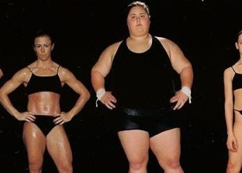 Замена коленного сустава у полных людей: особенности операций с лишним весом