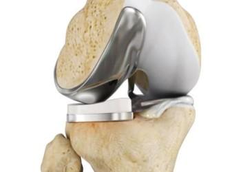 Цены эндопротезирования коленного сустава в Израиле и поиск альтернативы