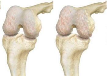 Инструкция по реабилитации после эндопротезирования коленного сустава