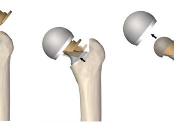 Гемиартропластика тазобедренного сустава при переломе шейки бедра: отличия от эндопротезирования