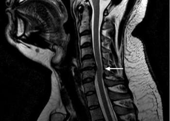 Факты об удалении грыжи шейного отдела позвоночника: при каком размере показана операция