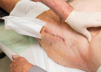 Поэтапная реабилитация после операции по эндопротезированию ТБС