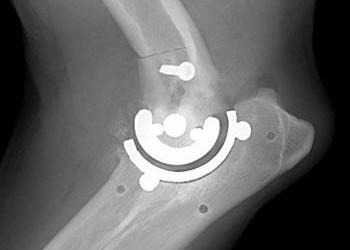 Виды операций на локтевом суставе, способы лечения и восстановления