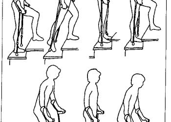 Ходьба по ступенькам после эндопротезирования тазобедренного и коленного сустава