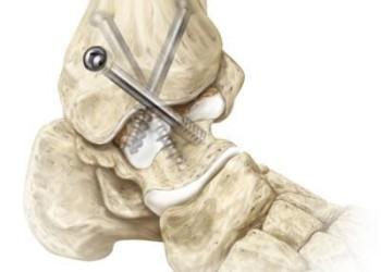 Артродез голеностопного сустава: виды замыкания, показания, осложнения