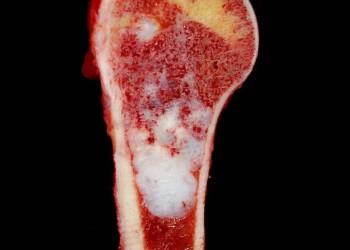 Энхондрома: симптомы, диагностика, операция по удалению и восстановление