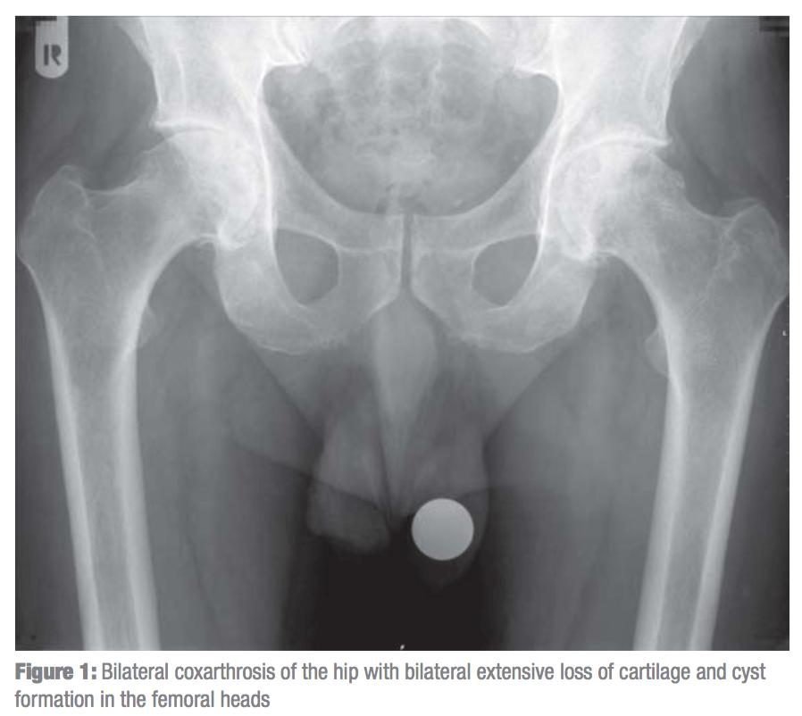 Изображение - Эндопротезирование двух тазобедренных суставов одновременно 11