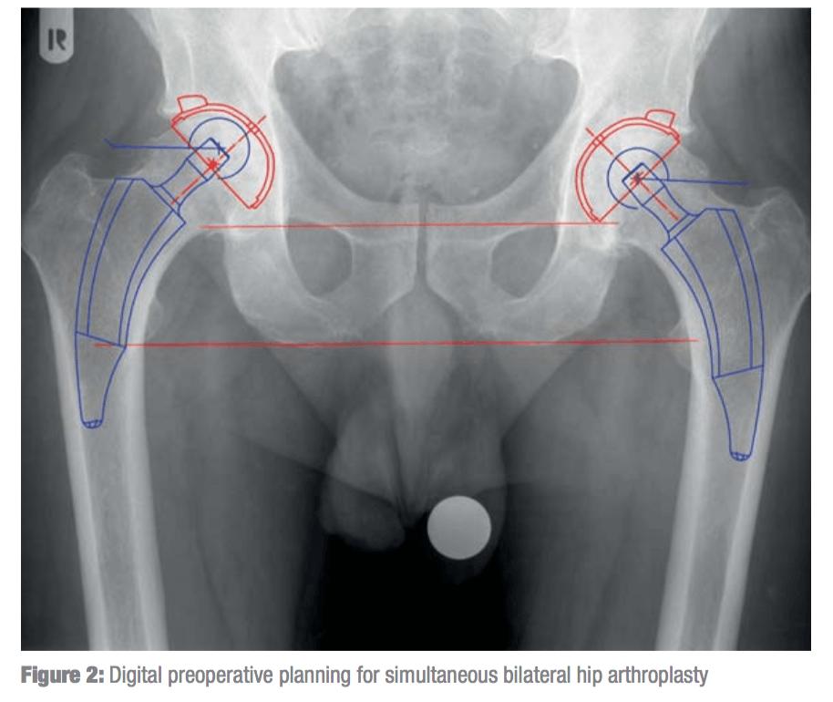 Изображение - Эндопротезирование двух тазобедренных суставов одновременно 12