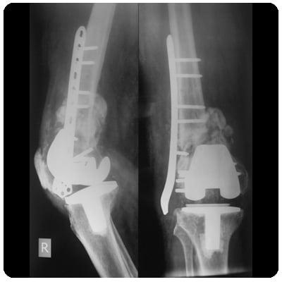 Когда требуется эндопротезирование коленного сустава