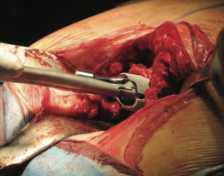 Рис.5 Имплантация короткостержневого бедренного протеза.