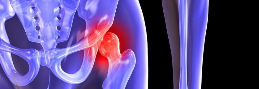 Эндопротезирование тазобедренного сустава: плюсы и минусы