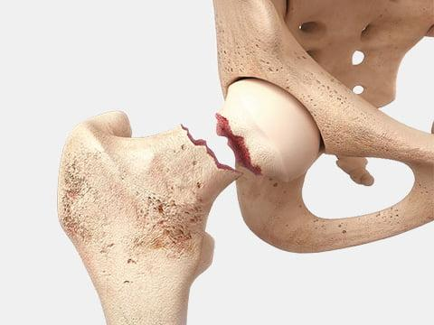 Замена тазобедренного сустава ход операции
