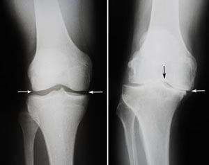Замена коленного сустава, цена, квота и осложнения