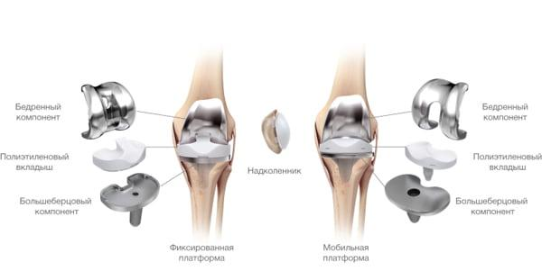 Периоды восстановления после замены коленного сустава