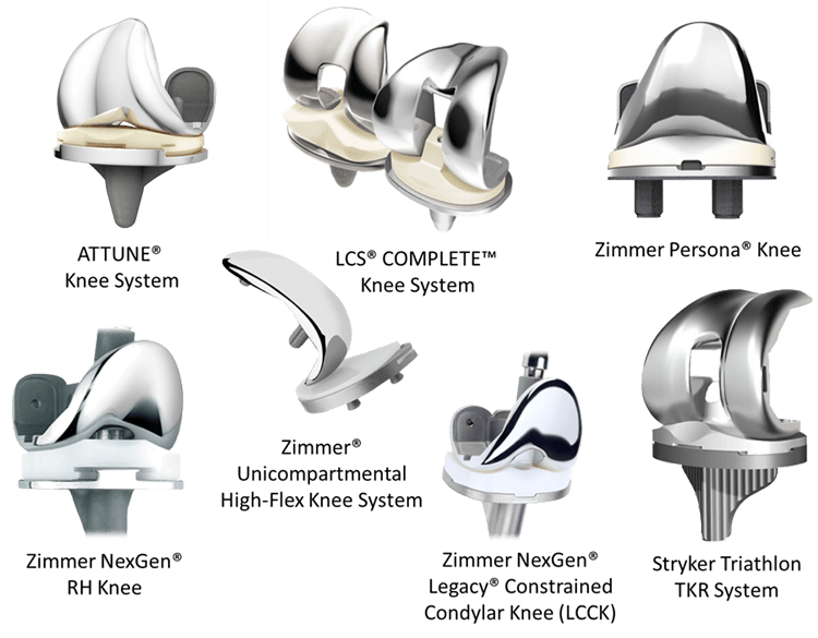 Нестабильность эндопротеза коленного сустава - Все про суставы