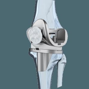 Изображение - Протезы зиммер сша тазобедренного сустава knee-1-300x300