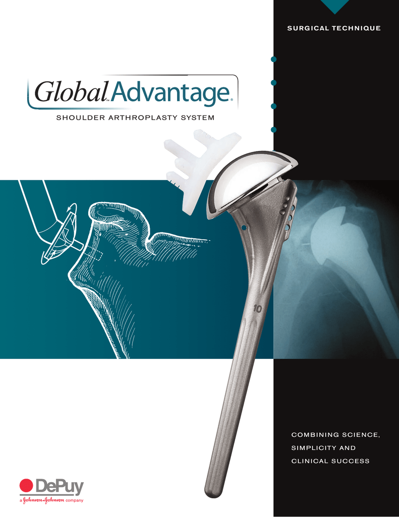 GLOBAL ADVANTAGE® Shoulder Arthroplasty System