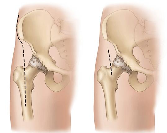 Операция по замене тазобедр сустава