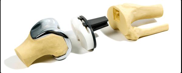 Как делают эндопротезирование коленного сустава