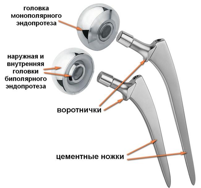 Устройство эндопротеза