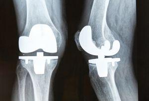 Имплант на рентгене.