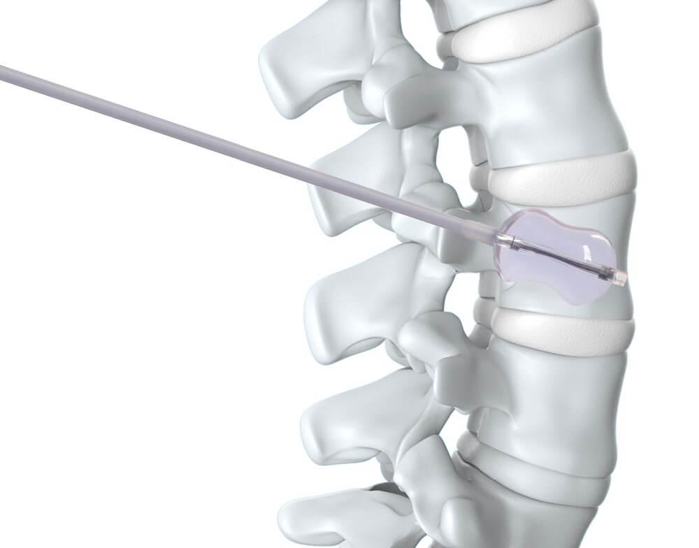 Вертебропластика восстановит опорные функции позвоночника